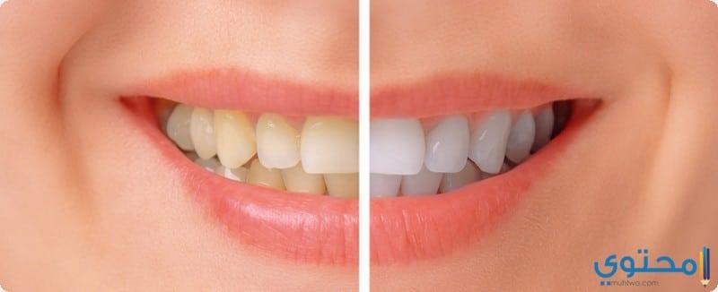 طرق علاج اصفرار الأسنان بوصفات منزلية