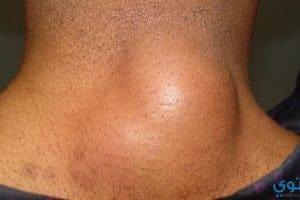 أسباب ظهور الأكياس الدهنية وعلاجها