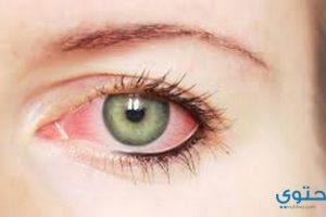 علاج التهاب العين بالأعشاب