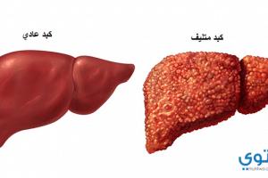 علاج التهاب الكبد بالأعشاب