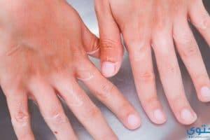 وصفات لعلاج الزوائد الجلدية حول أطراف الأصابع