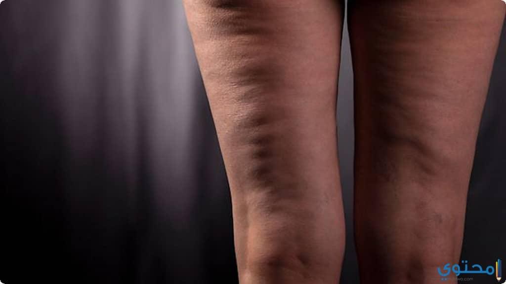 علاج السليوليت بالجسم