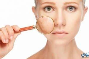 علاج كلف الوجه بالأعشاب