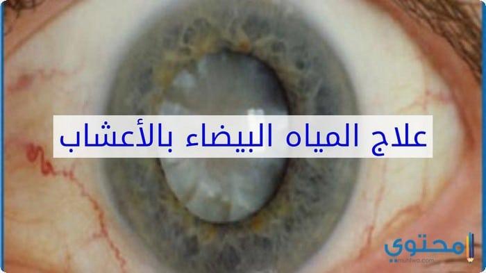 علاج المياه البيضاء في العين بدون جراحه