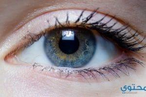 علاج المياه الزرقاء فى العين