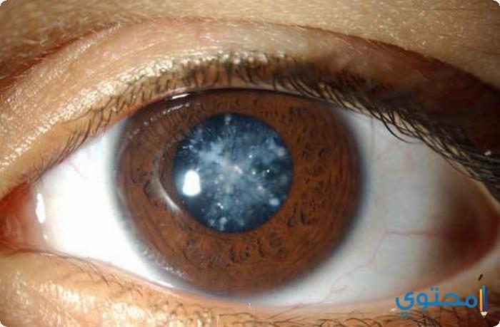 أسباب المياه الزرقاء فى العين