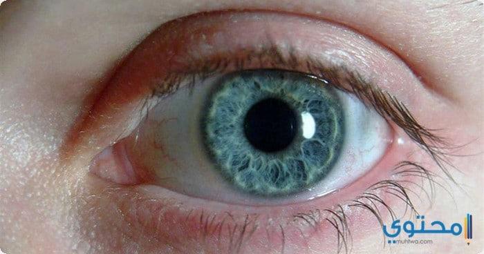 أعراض المياه الزرقاء فى العين