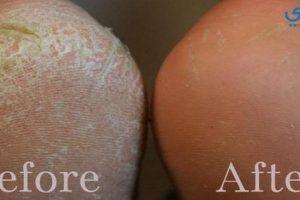 احدث طرق علاج تشققات القدمين