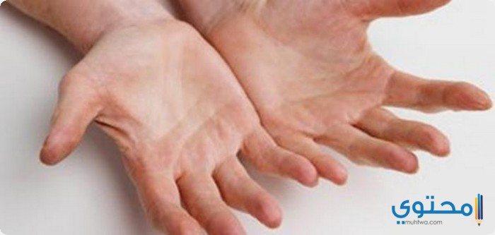 أسباب تشقق اليدين