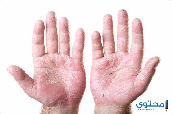 أعراض تشقق اليدين