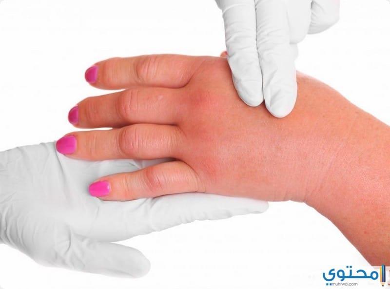 أسباب تورم القدمين واليدين وطرق علاجها