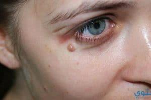 علاج ثآليل الوجه والجلد والبشرة والقدم (مسمار اللحم)
