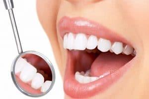 علاج جير الأسنان بالأعشاب