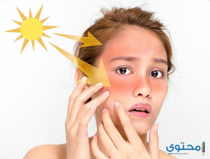علاج حروق الشمس بالوصفات الطبيعية