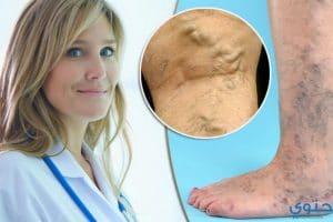 علاج دوالي الساقين بطرق حديثة وبالاعشاب