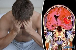 طرق علاج مرض أورام المخ