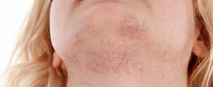 علاج ظهور شعر الذقن عند النساء
