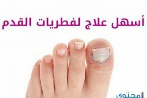 طرق طبيعية لعلاج فطريات القدم