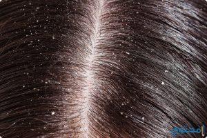 علاج قشرة الرأس بطرق حديثة 2018