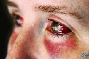 علاج كدمات العين بأحدث الطرق