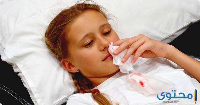 علاج نزيف الانف عند الاطفال عند النوم
