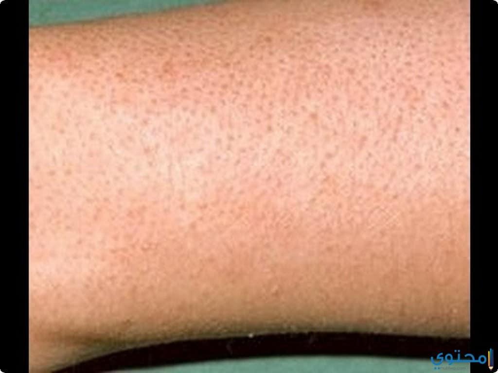 3ef211771 علاج نمو الشعر تحت الجلد فى الساقين - موقع محتوى