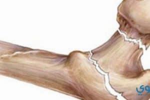 علاج هشاشة العظام بطرق حديثة