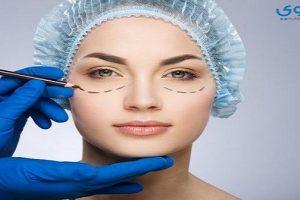 ماهي المخاطر من عمليات تجميل العين والجفون ؟