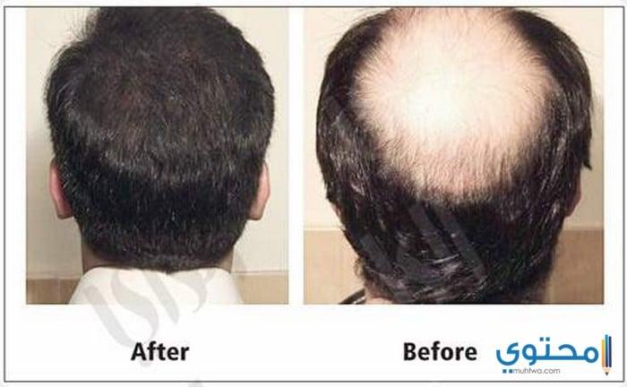 مميزات زراعة الشعر بالكويت
