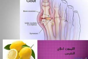 فوائد الليمون لعلاج النقرس