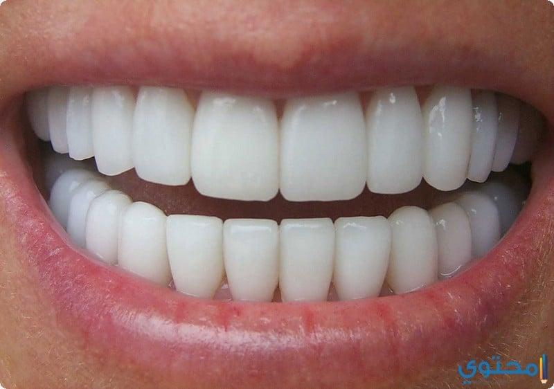 فوائد لسان البحر لتبييض الأسنان