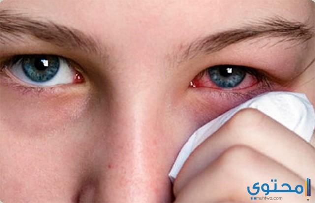 قطرة عين بيفن Bephen لعلاج هربس العينين