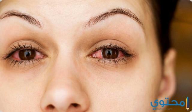دواعي استخدام قطرة عين توبراسين