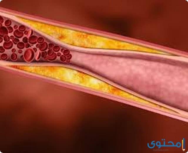 ما هو دواء كوليليسيس