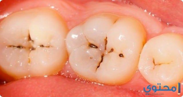 علاج تسوس الاسنان