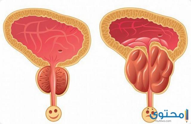 مدة الشفاء من التهاب البروستاتا