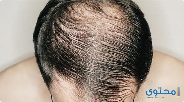 مميزات زراعة الشعر فى الأردن