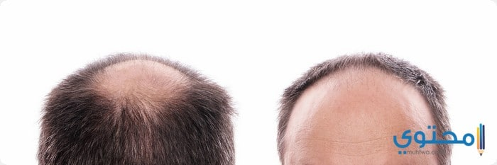 اسعار زراعة الشعر فى الأردن