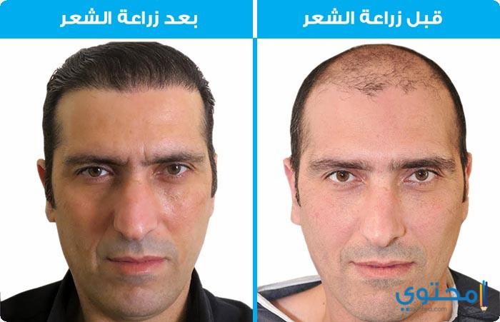 زراعة الشعر فى مصر بالإقتطاف