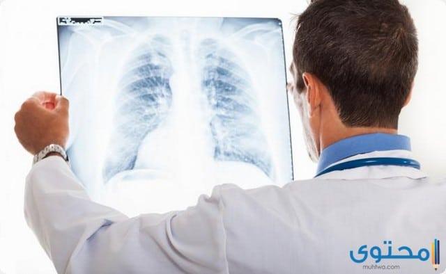 احدث علاج مرض الالتهاب الرئوي