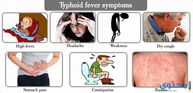علامات وأعراض التيفود