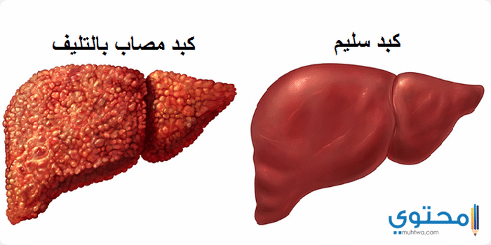 علاج السرطان