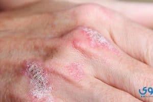 أحدث طرق علاج مرض الصدفية بالأعشاب
