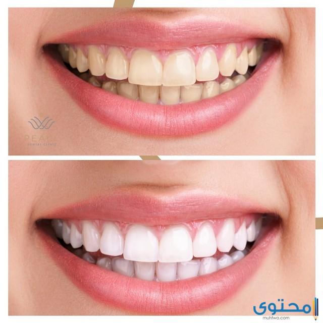 مستشفى أسنان في الإمارات
