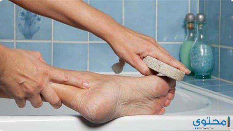 أسباب ظهور مسمار القدم وعلاجة بوصفات منزلية سهلة 6