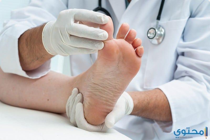 أسباب ظهور مسمار القدم وعلاجة بوصفات منزلية سهلة 5