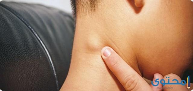 مضاد حيوي لالتهاب الغدد اللمفاوية