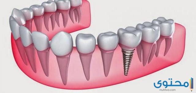 هل تعلم عن الاسنان