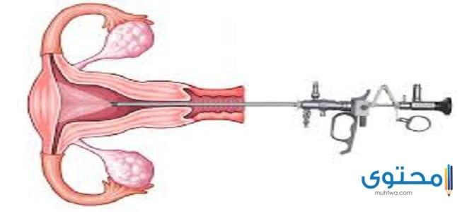 هل ثقب الرحم يمنع الحمل