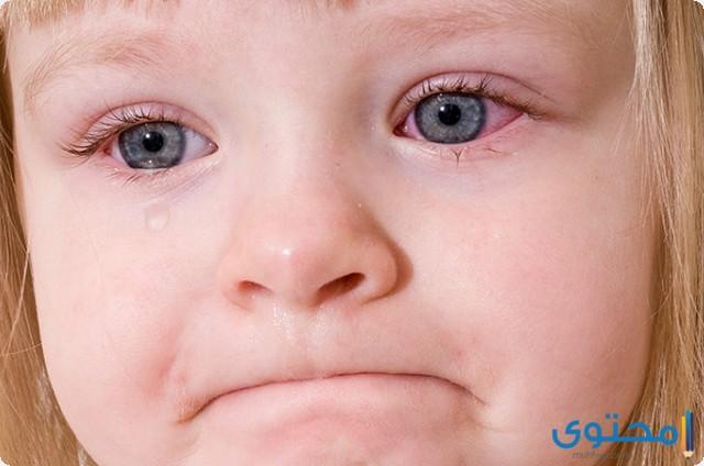 وجع العين المفاجئ عند الأطفال